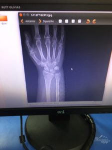 Xray of Broken wrist while travelling | My Wandering Voyage travel blog