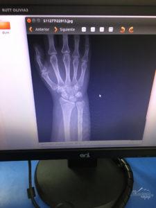 Xray of Broken wrist while travelling | My Wandering Voyage travel blog