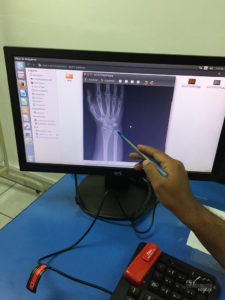 X ray of broken wrist - travelling in Galapagos | My Wandering Voyage travel blog